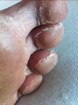 huden skaller af i håndfladen
